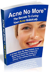 The Best Natural Acne Cure Guide