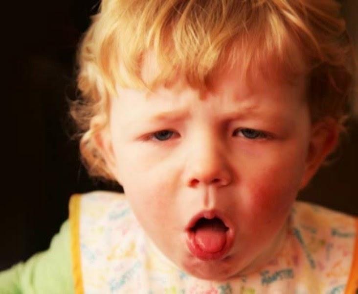 Cara cepat mengobati batuk pada anak