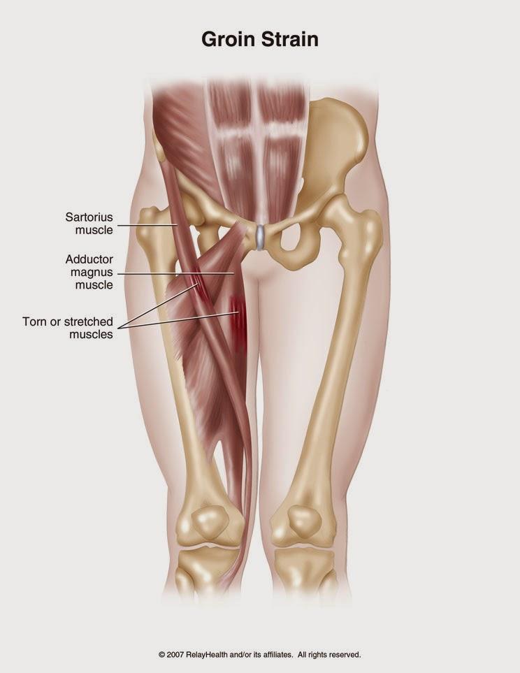 Perfecto Ingle Tendones Y Ligamentos Anatomía Galería - Anatomía de ...