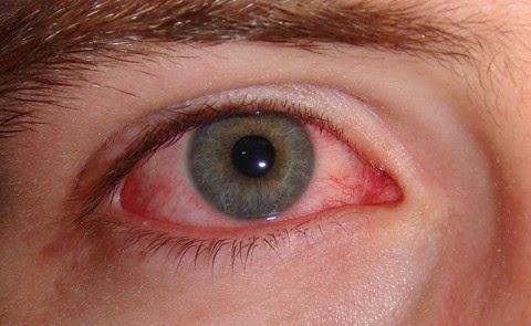 Understanding Diabetic Eye Conditions