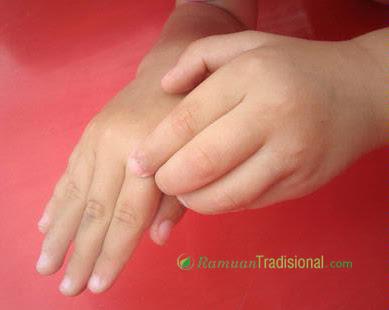 Ramuan Tradisional Penyembuhan Alergi