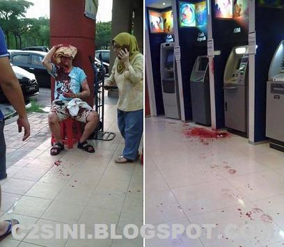 CEMAS Lelaki Ini Berlumuran Darah Disamun di Bank Kota Damansara