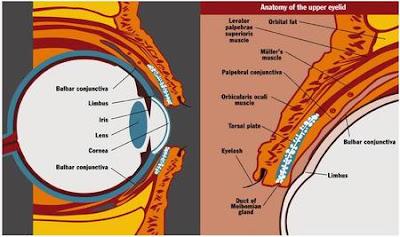التراكوما Trachoma