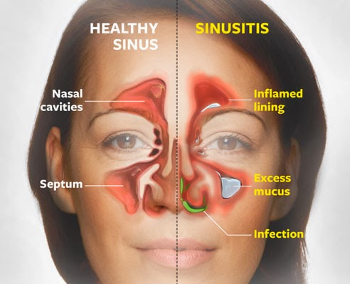 Obat Sinusitis Tradisional