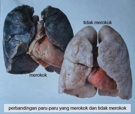 Perbedaan paru paru seorang perokok dan tidak perokok