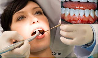 Gum problems- Gum diseases are generally caused due to deficiency of vitamin C. Regular consumption of lemon can prevent gum disorders.