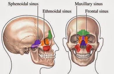 sinus spray steroid
