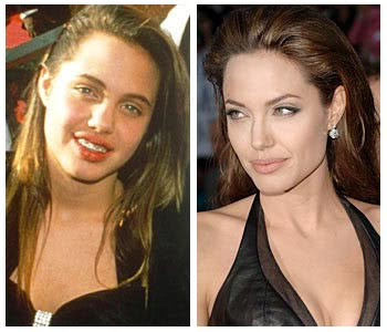 Angelina Jolie Plastic Surgery Before And After