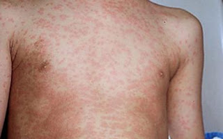 Measles Outbreak In Niger, Six Children Have Died