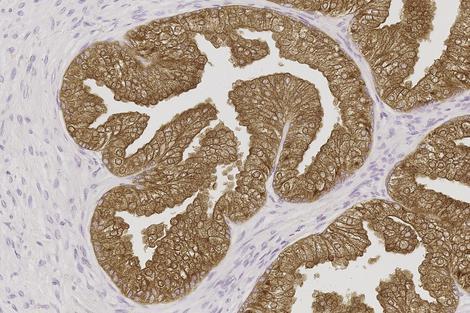 sthlm3 prostata