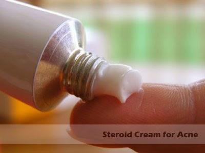 steroid cream for acne