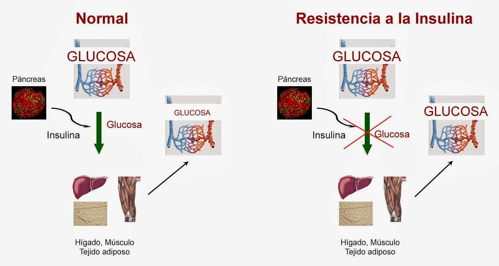 Consecuencia de la resistencia a la insulina sobre la glucosa en sangre