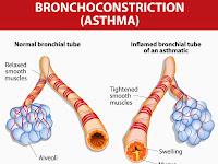 Cara Mengatasi Asma Bronkial Dengan Ramuan Alami