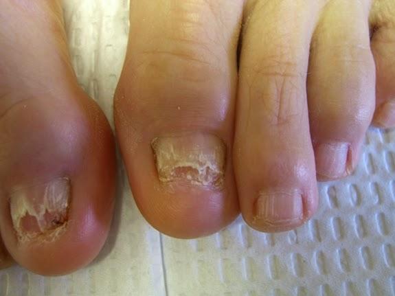 El tratamiento del hongo del pies flukonazolom