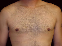 Gynecomastia Surgery Sacramento - Male Breast Reduction