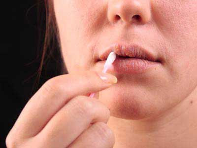 herpes na usni slike