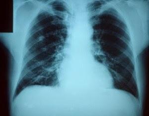 Belluno casi di polmonite atipica