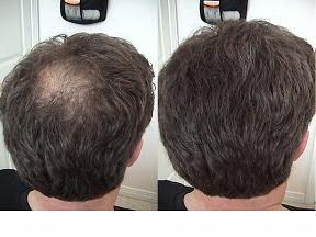 como puedo detener la caida del cabello