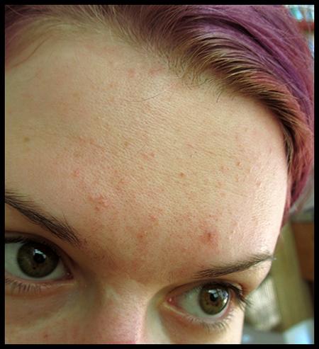 iho täynnä pieniä näppyjä