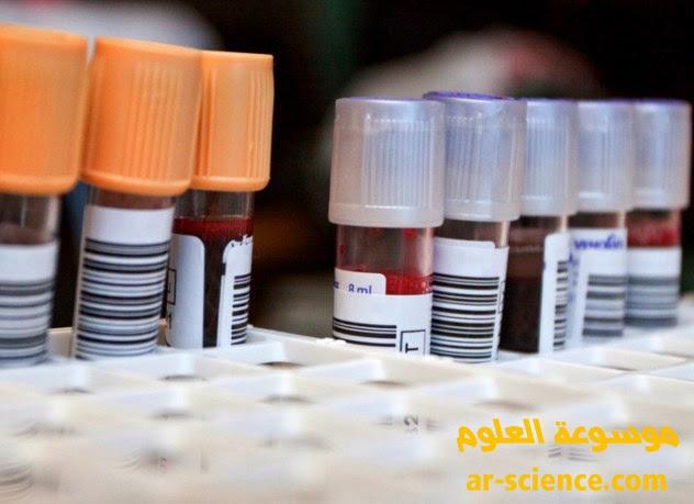 لماذا لدينا فصائل دم مختلفة