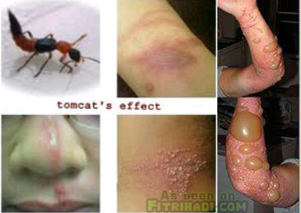 gambar serangga tomcat bahaya kesan kulit manusia herpes nanah