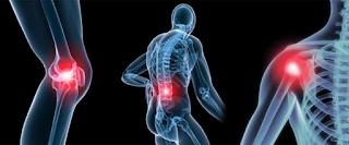 Comparação da Osteoartrose entre Idosos Ativos versus Sedentários