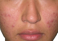 Cara aman menghilangkan noda hitam atau bekas jerawat di wajah