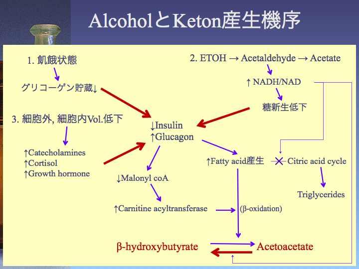 アルコール性ケトアシドーシスを合併した2型糖尿病の1例