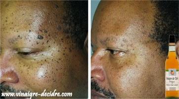 vinaigre de cidre visage