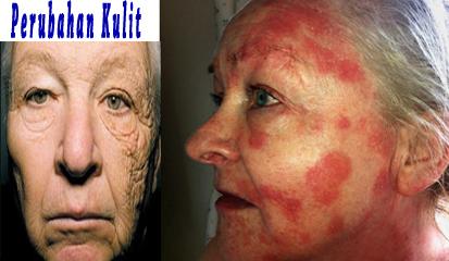 Definisi penyakit kulit