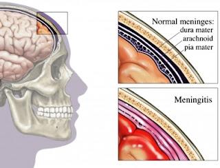 Posición y capas de las meninges, acompañado de una imagen de las meninges inflamadas