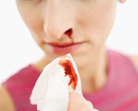 Pengobatan Alternatif Kanker Darah