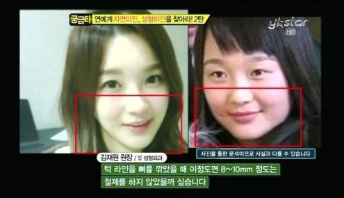 Min Kyung Operasi Plastik