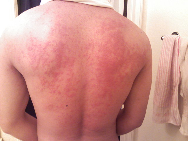 Pin Shellfish Allergy Rash Pictures On Pinterest