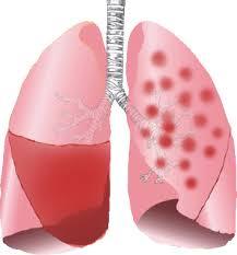 Image result for pneumonia penyakit