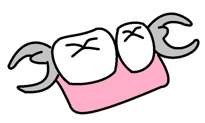 歯医者・歯科医院の無料素材(イラスト・写真・配布物)ブログ: 部分入れ歯のイラスト