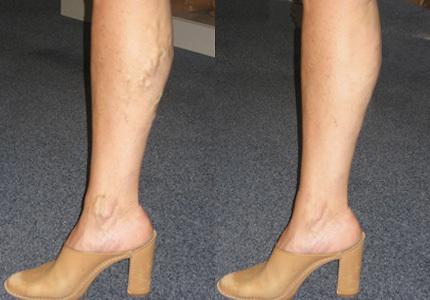 how to avoid varicose veins