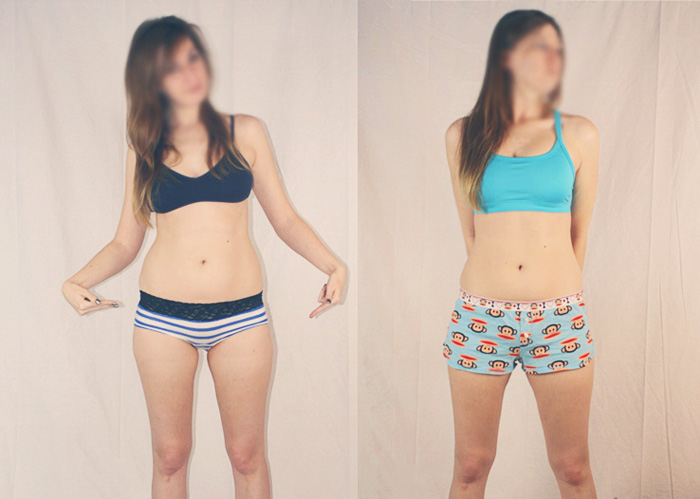 Will i lose weight after supracervical hysterectomy