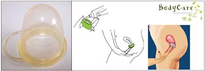 Capuchón cervical