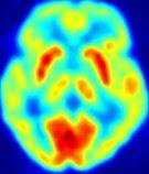 Cérebro X Aprendizagem