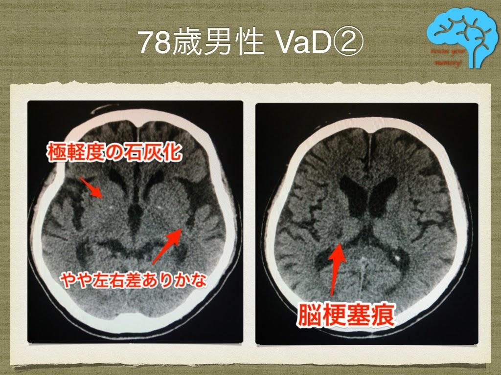 脳血管性認知症 治療で改善②