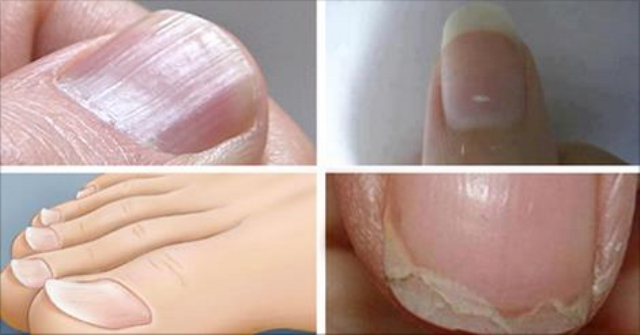 7 Nail Conditions That Are Linked to Serious Health Issues (and what to do about them)