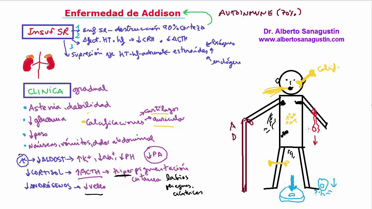 enfermedad de Addison, manifestaciones clínicas