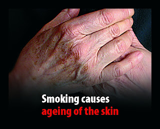 Smoking Causes Skin Ageing