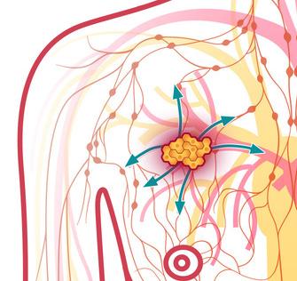 obat kanker payudara