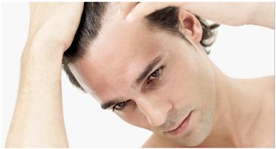 Cara Alami Mengatasi Rambut Rontok dan Kebotakan Dengan Cepat