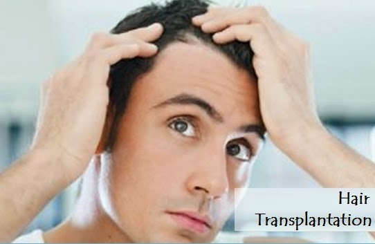 Hair Transplant and Diabetes