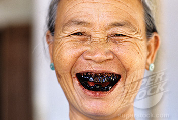 how to smile without showing your gums