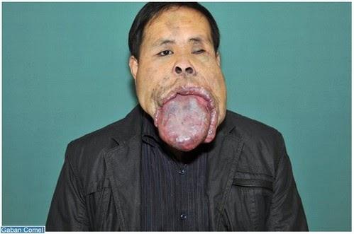 Wang Youping Lelaki China Mempunyai Lidah Terbesar di Dunia