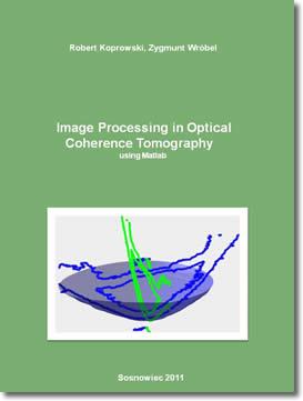 Download Gratis eBook Image Processing